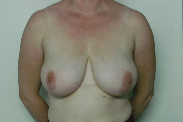 Large droopy breasts before surgery