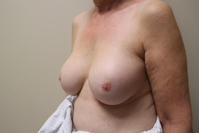 Inflamed breasts riding high with scar formation