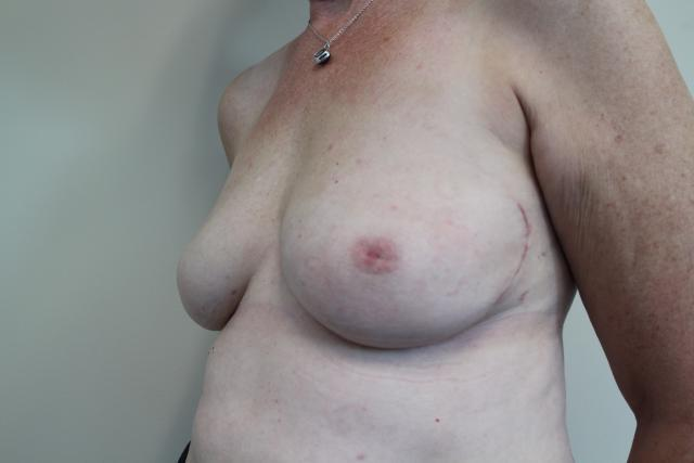 The breasts are now soft, comfortable and normal volume.