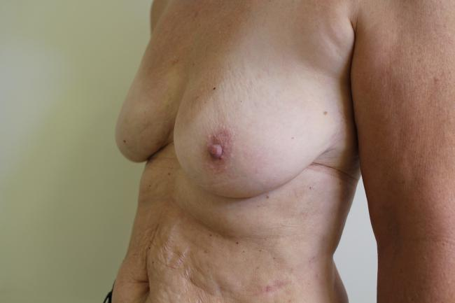 Progress photo shows completed reconstruction before nipple and before mastoplexy on other side