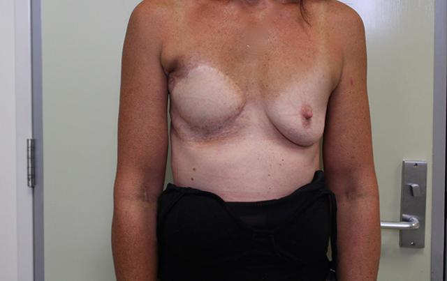 Case 1: Photos show the health of damaged skin returning to a healthy pink colour