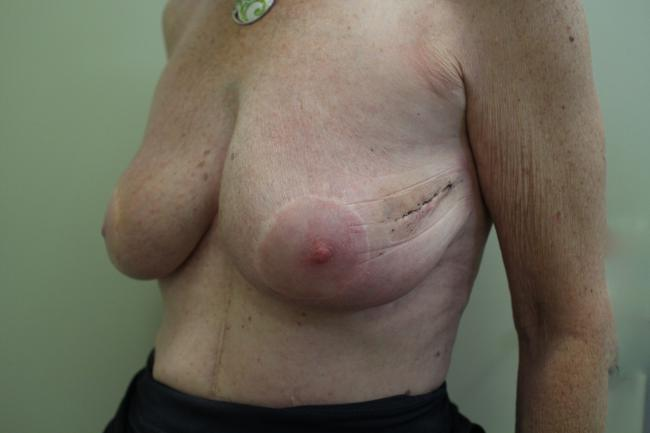 Case 2: Post op left