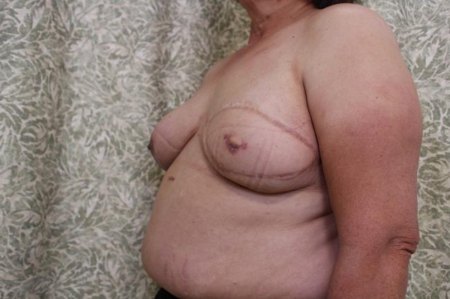 Progress photo shows the new breast. Nipple tattooing is the next stage.